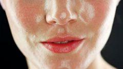 Как устранить проблемы жирной кожи