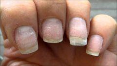 Как восстановить поврежденные ногти после шеллака
