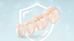 Какие есть тонкости выбора и разновидности зубных коронок