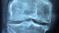 Болят суставы рук и ног: что делать?