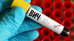 ВИЧ и СПИД: причины, последствия, как предотвратить заражение