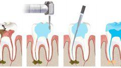 Больно ли удалять нерв из зуба? Зачем зубу нужен нерв?