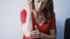 Лучший крем от аллергии на коже у взрослых: обзор