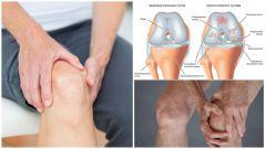 Как вылечить артроз коленного сустава в домашних условиях