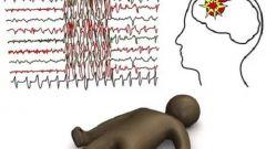 Абсансная эпилепсия: симптомы и лечение