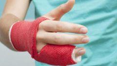 Как жить с загипсованной рукой