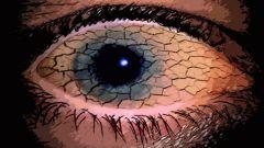Синдром сухого глаза – болезнь современного общества
