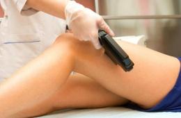 Лазерная эпиляция - процедура эффективная, но не для всех участков кожи