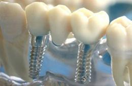 Красивые зубки с помощью импланта