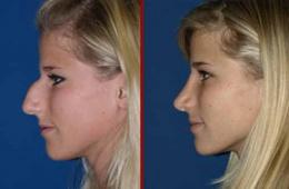 Ринопластика носа - не проблема и не риск!