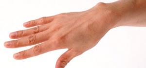 Как отвыкнуть грызть ногти