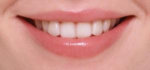 Почему болит зуб