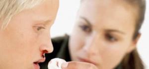 Что делать, если идет кровь из носа