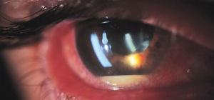 Почему белок глаза красный