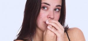 Привычка грызть ногти: как перестать