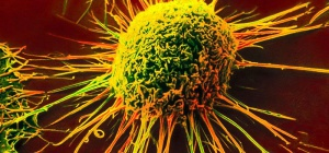 Как выявить злокачественную опухоль