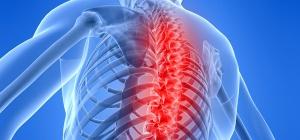 Как лечить ущемление нерва