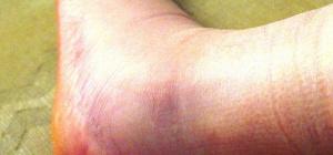 Как лечить перелом лодыжки