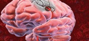 Как определить инсульт