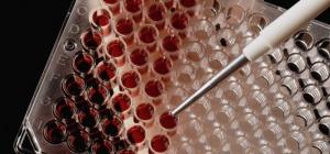 Как сдать кровь на гормоны