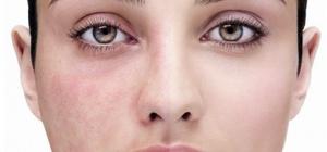 Как избавиться от сосудистой сеточки на лице