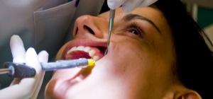 Как лучше удалять зуб мудрости