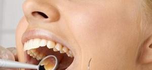 Как вылечить зубы без боли