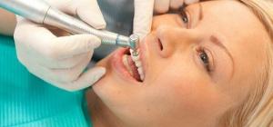 Почему необходимо удалять зубной камень?