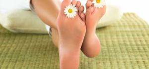 Почему на подошве ног появляются натоптыши