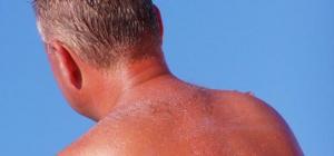 Как лечить сильный солнечный ожог с отеком