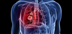 Первые симптомы рака легких