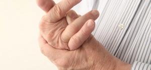 Как понять, почему опухают пальцы на руках