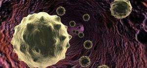 Что такое лимфоцитоз и как его лечить