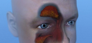 Как выглядит гайморит на снимках