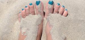 Грибок стоп и ногтей: причины появления и профилактика