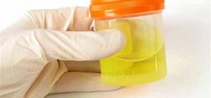 Как понизить сахар в моче