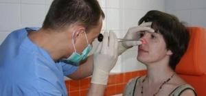 Методы лечения хронического гайморита