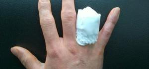 Что делать, если отрубило палец