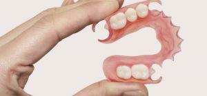 Какие бывают современные съемные зубные протезы