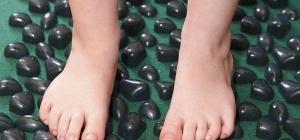 Что такое плоско-вальгусные стопы