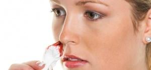 Кровь из носа: возможные причины и лечение