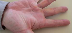 Как лечить контрактуру ладони