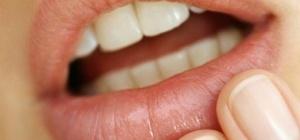 Как лечить прыщи на губе