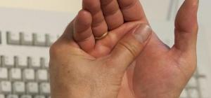 Полиартрит суставов: причины возникновения