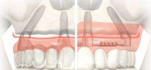 Какие есть преимущества и этапы имплантации Все на четырех или шести
