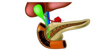 Как лечить панкреатит