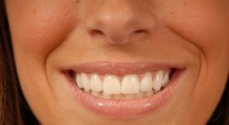 How to get rid of gaps between teeth