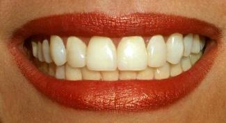 Как склеить зубной протез