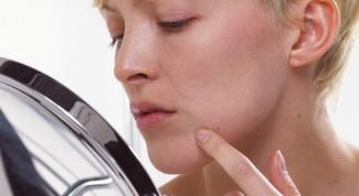 Как удалить рубцы на лице