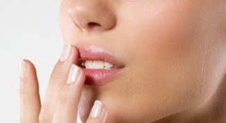 Как лечить потрескавшиеся губы